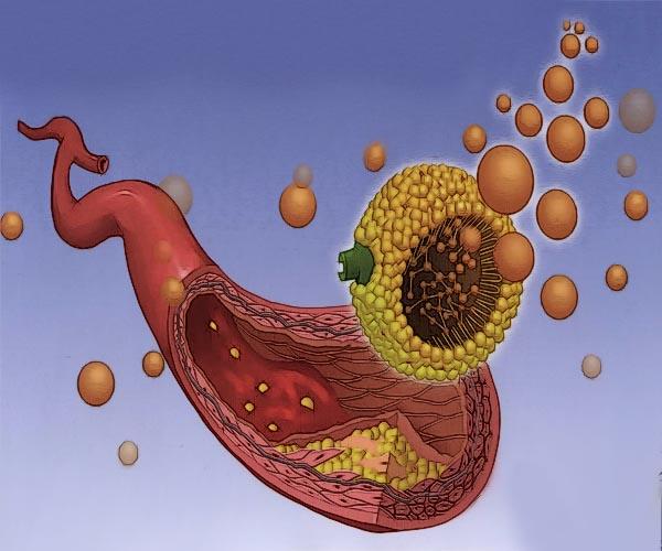 высокий плохой холестерин причины